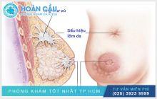 Dấu hiệu bệnh ung thư vú? Nguyên nhân và cách điều trị hiệu quả