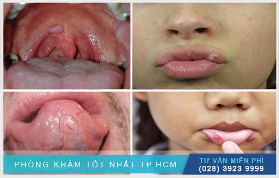 Bạn có biết bệnh sùi mào gà ở miệng giai đoạn đầu ra sao không ?