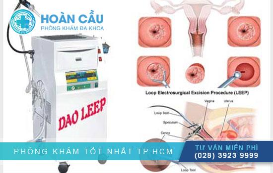   Chữa polyp cổ tử cung hiệu quả cao với Dao LEEP