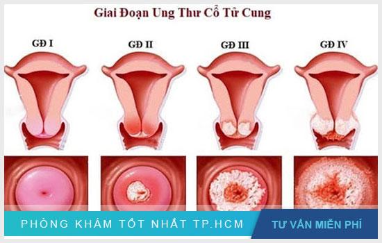 Các giai đoạn của bệnh ung thư cổ tử cung ở nữ giới