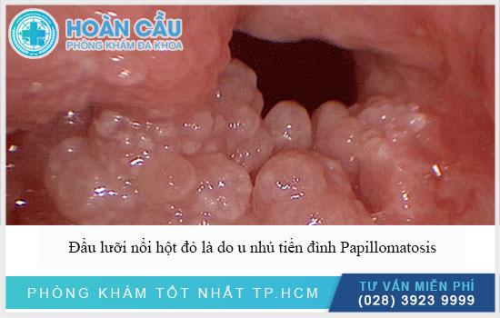Ở đầu lưỡi nổi hột đỏ là do u nhú tiền đình Papillomatosis