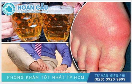 Đau nhức chân tay sau khi uống rượu có thể do mắc bệnh gout