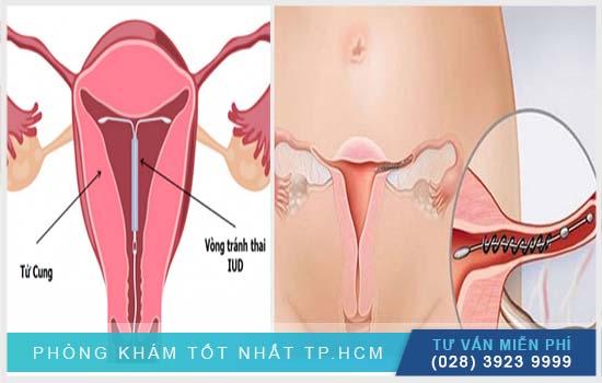 Dây vòng tránh thai lòi ra ngoài