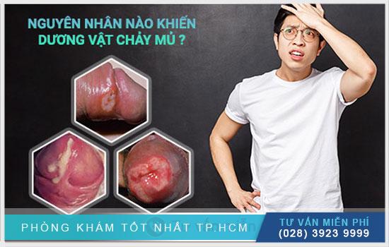 Topics tagged under dakhoatreatment on Diễn đàn rao vặt hiệu quả, dang tin mua ban mien phi Duong-vat-co-mu-la-benh-gi-co-nguy-hiem-khong