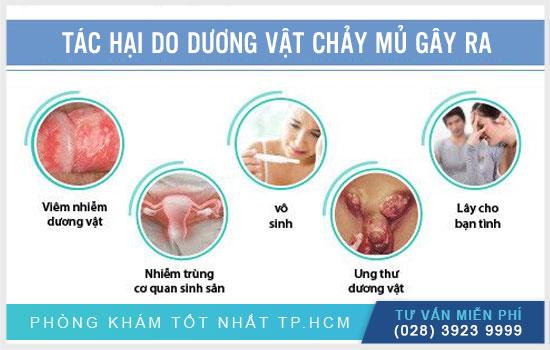 Topics tagged under dakhoatreatment on Diễn đàn rao vặt hiệu quả, dang tin mua ban mien phi Duong-vat-co-mu-la-benh-gi-co-nguy-hiem-khong1