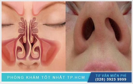 Gai vách ngăn mũi là gì? Bệnh có nguy hiểm không