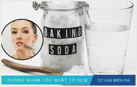 Trị mụn đơn giản bằng baking soda và nước