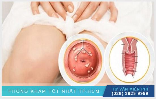 Địa chỉ điều trị nang naboth cổ tử cung