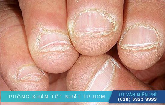 Nấm móng tay là gì ? Nguyên nhân gây nấm móng tay