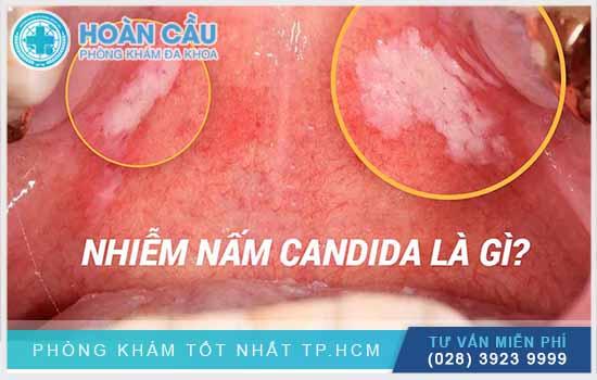 Nhiễm nấm Candida chính là thắc mắc của nhiều chị em