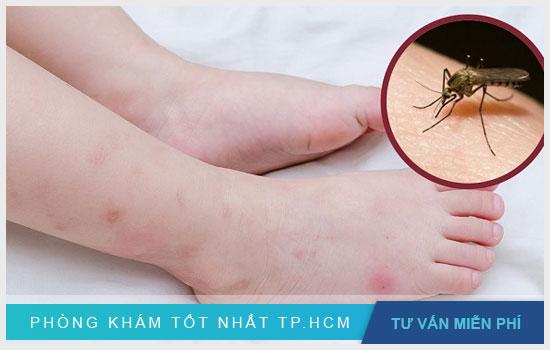 Vì sao muỗi đốt lại khiến da bị thâm ? trị thâm tại nhà như thế nào ?