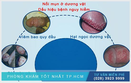 Nổi mụn trắng ở bao quy đầu là dấu hiệu nhiều bệnh lý