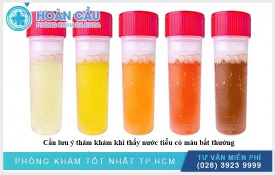Màu sắc nước tiểu cảnh báo triệu chứng bệnh lý