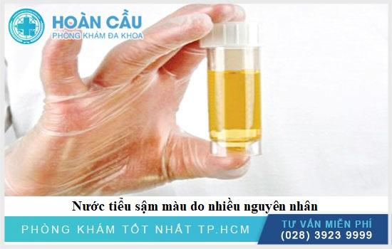 Có nhiều nguyên nhân gây nước tiểu có màu vàng đậm