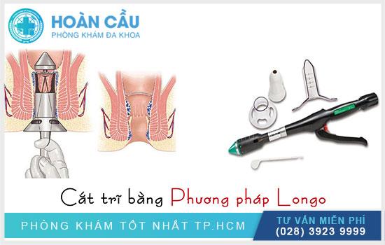 Phương pháp phẫu thuật cắt trĩ Longo