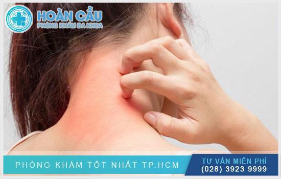 Khi sử dụng thuốc liều cao sẽ có phản ứng dị ứng nhẹ như đỏ da
