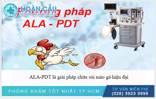 ALA-PDT là giải pháp chữa sùi mào gà hiệu quả