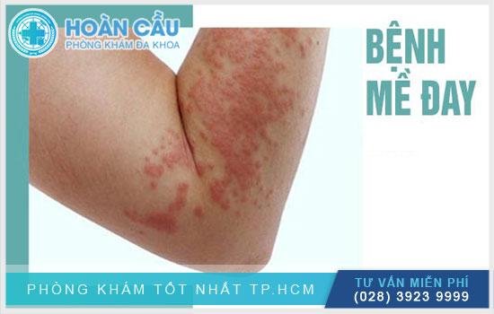 Mề đay mẩn ngứa là căn bệnh đặc biệt phổ biến ở Việt Nam