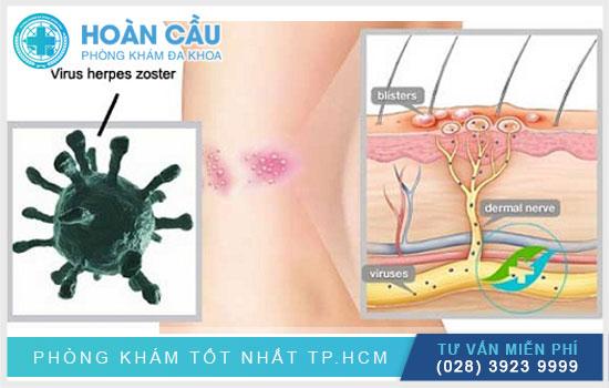 https://dakhoahoancautphcm.vn/upload/hinhanh/tim-hieu-thong-tin-ve-virus-zona-than-kinh.jpg