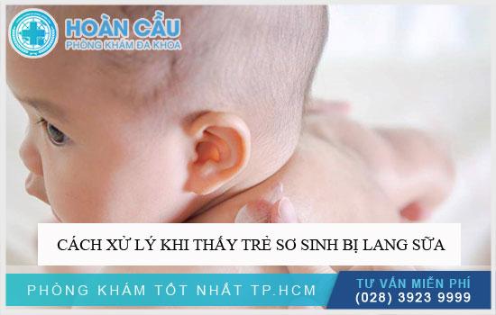 Cách xử lý khi thấy trẻ sơ sinh bị lang sữa