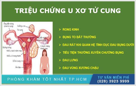 Tổng hợp triệu chứng thường gặp của u xơ tử cung