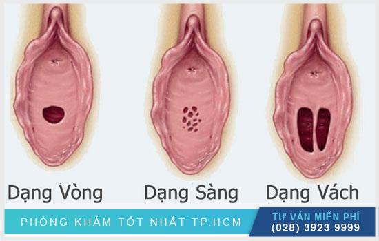 Các loại hình dạng màng trinh cần biết