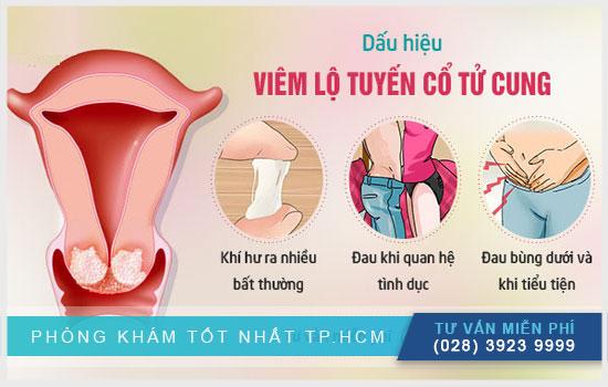 Triệu chứng nhận biết viêm lộ tuyến cổ tử cung