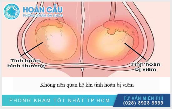 Topics tagged under dakhoatreatment on Diễn đàn rao vặt hiệu quả, dang tin mua ban mien phi Viem-tinh-hoan-co-quan-he-duoc-khong-phai-lam-sao-khi-bi-2