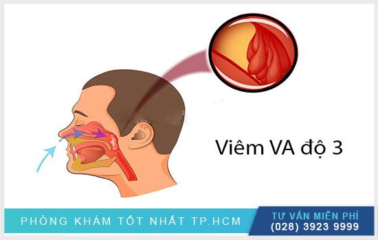 Viêm VA độ 3 là gì? Có nguy hiểm không ?