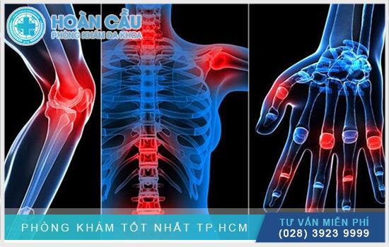 Viêm xương khớp là nỗi ám ảnh của nhiều người bệnh