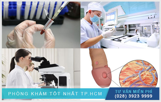 Một số xét nghiệm - chẩn đoán khác trong điều trị giang mai